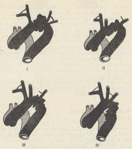 варианты врожденного удлинения и извитости дуги аорты. Серым цветом обозначено нормальное положение дуги аорты, черным — при удлинении и извитости. Объяснение в тексте