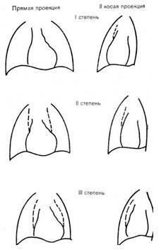 Отзывы о косметике гуам для увеличения груди