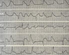 Какие таблетки при аритмии сердца