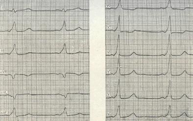 Синдром преждевременного возбуждения желудочков - Комбинированные ...