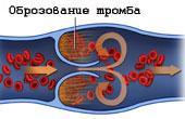 Что такое тромболитическая терапия?