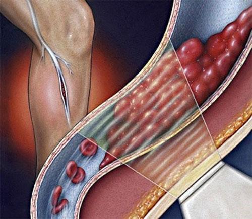 Оброзование тромба