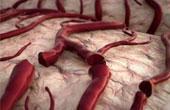 Что такое болезнь малых сосудов?