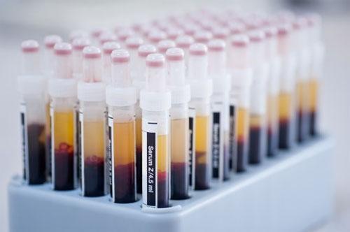 Что такое сыворотка крови