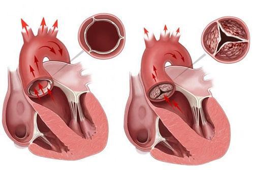 Расширение корня аорты причины