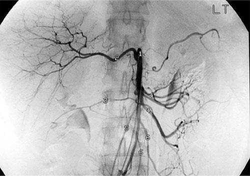 Что такое чревная артерия?