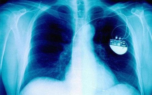 Что такое электрод кардиостимулятора?