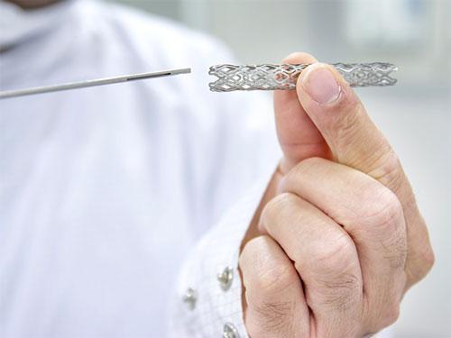 Каковы наиболее распространенные причины отказа стента?