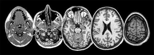 Когда нужно сделать МРТ головы