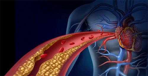 Что такое ишемия артерий?