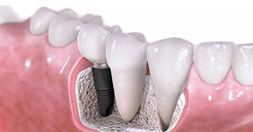Имплантация зубов: методы и их особенности