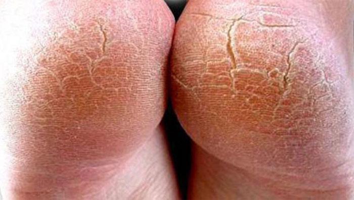 Гиперкератоз: особенности течения болезни