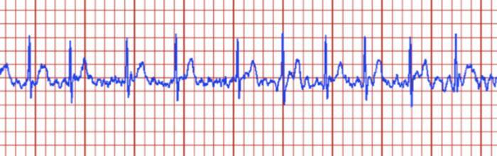 Как контролировать мерцательную аритмию?