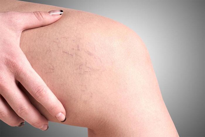 Облегчение болей при варикозном расширении вен на ногах