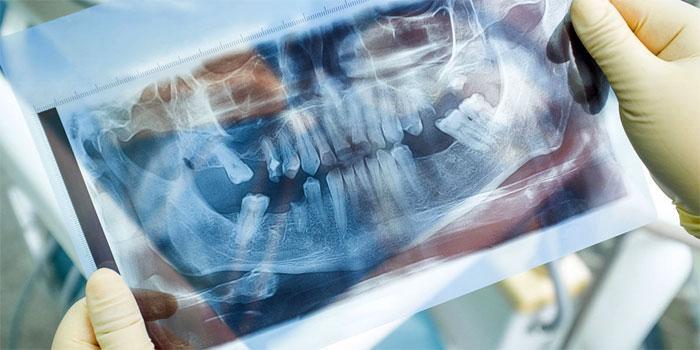 Костная пластика в стоматологической практике