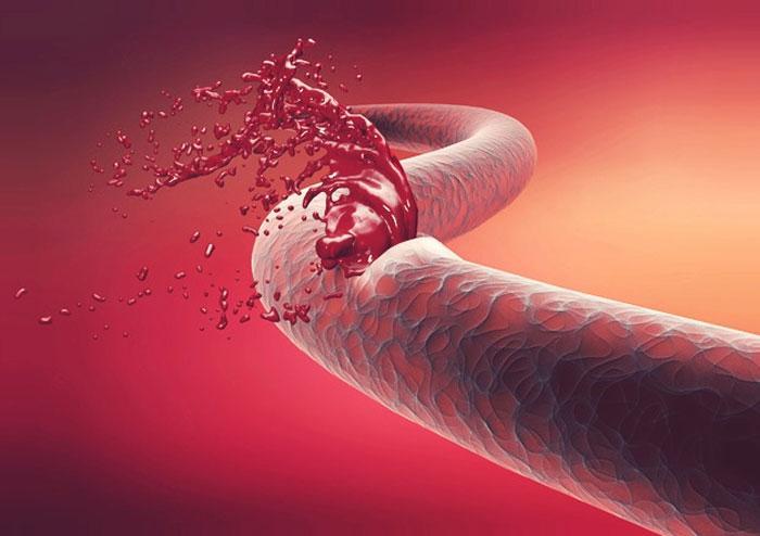 Что нужно знать о гемофилии?