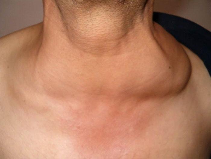 Болезнь Ходжкина: причины, симптомы и лечение