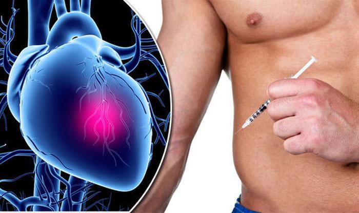Стероиды и проблемы с сердцем