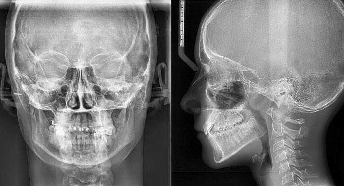 Рентген: принцип работы и показания