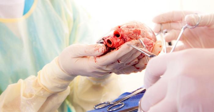 Насколько оправдана пересадка сердца?
