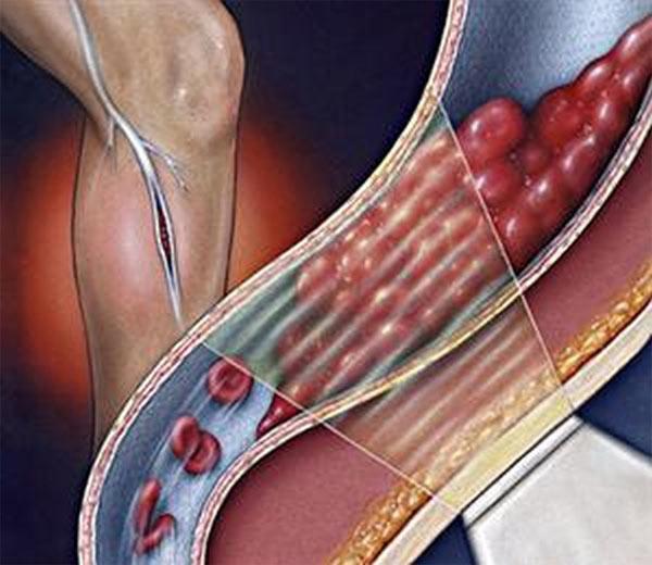Симптомы закупорки артерии