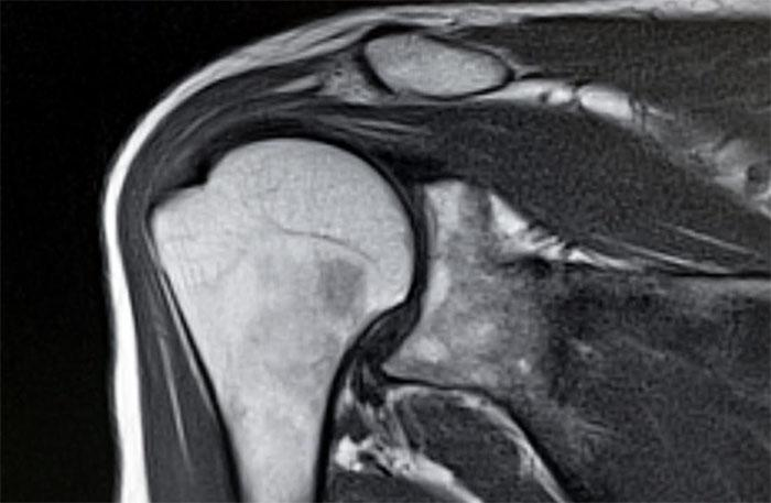 Как проводится МРТ плеча