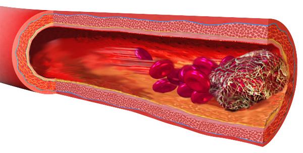 Как образуются тромбы