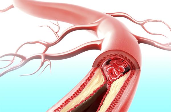 Как паразитарная бактерия разрушает кровеносные сосуды в организме человека