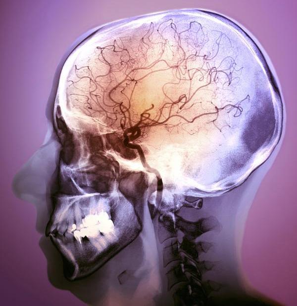 Приливы и отливы в желудочках мозга